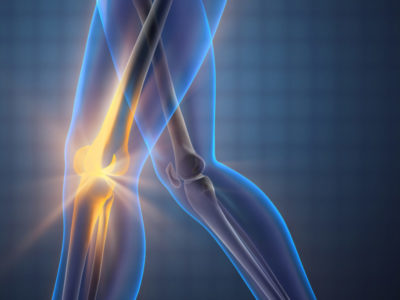 Light focused on knee to indicate the source of pain