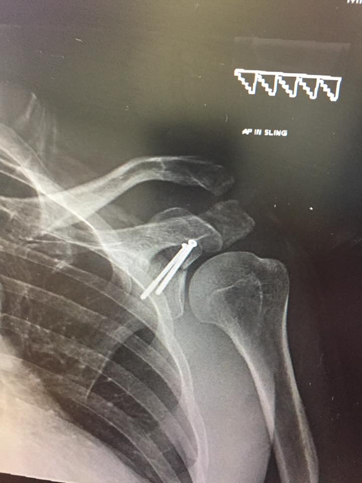 Mark Kidd's Shoulder X-Ray